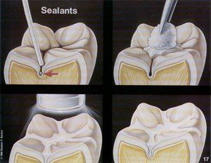 Malcomson Dentistry Sealant