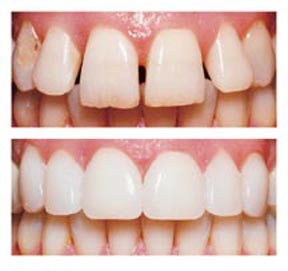 Malcomson Dentistry veneers
