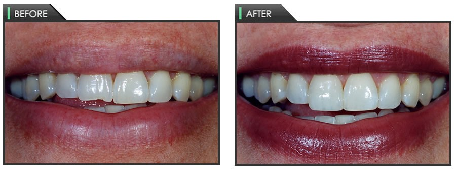 Bethesda cosmetic dentistry with dr denise malcosmonmalcomson dentistry solutioingenieria Gallery