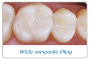 composite-filling