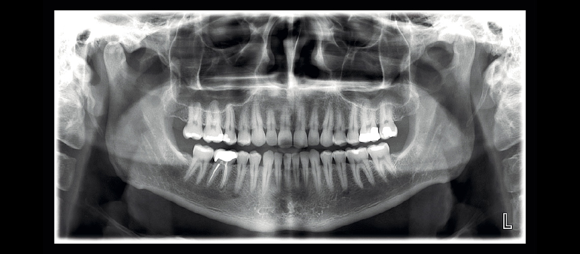 malcomson-dentistry-panograph